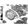 非雄激素依賴型前列腺癌 Tsu-Pr1
