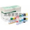 xt92016腸道病毒71型抗體IgG)診斷試劑盒96人份