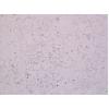 A549/DDP细胞-A549/DDP耐药株