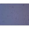 L1210/DDP细胞- L1210/DDP耐药株