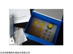 人溶酶体酸性磷酸酶2(ACP2)检测试剂盒