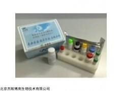 人分泌型卷曲相关蛋白1(SFRP1)检测试剂盒
