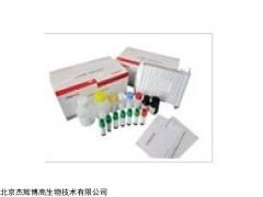 人蛋氨酸腺苷转移酶Ⅱα(MAT2α)检测试剂盒