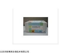 人质膜膜泡关联蛋白(PLVAP)检测试剂盒