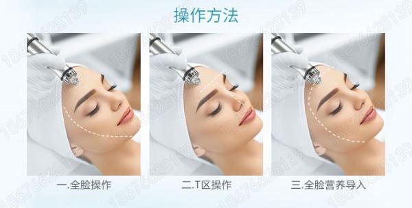韩国小气泡多少钱一台,韩国小气泡有什么副作用韩国小气泡治疗范围: 1、 痤疮、脂溢性脱发、毛囊炎、清螨、清除皮肤过敏源 2、 皮肤美白、改善皮肤晦暗、暗黄、改善肤质。 3、 深层清洁皮肤、同时给皮肤补水、补养、补氧。 4、 去除黑头,改善皮肤松弛,收细毛孔,增加皮肤透明度。 5、 用于剥脱性皮肤重建术和非剥脱皮肤重建术的术前备皮和术后护理。