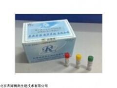 人輕肽神經絲蛋白(NEFL)檢測試劑盒