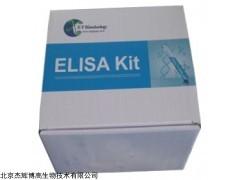 人卵泡抑素样蛋白1(FSTL1)检测试剂盒