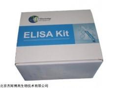 人紧密连接蛋白1(TJP1)检测试剂盒