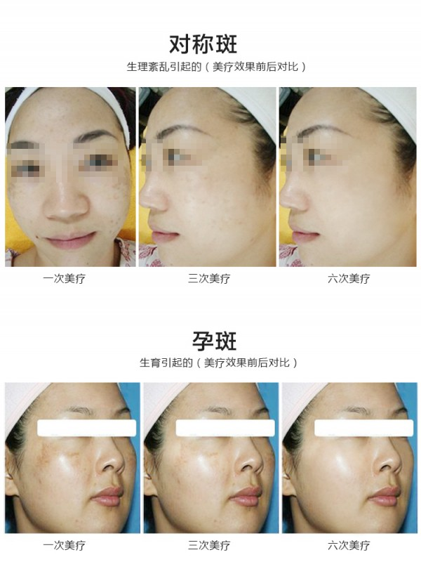 适用范围广,除了fda认证的祛斑,除皱,除痘印,祛纹身适应症外,一次治疗图片